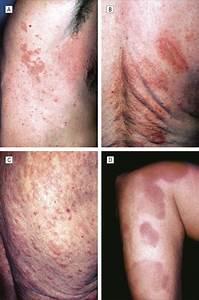 Defining Urticarial Dermatitis: A Subset of Dermal Hypersensitivity Reaction Pattern - JAMA ... Dermatitis