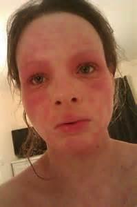 severe cat allergies i eczema dust cat allergies
