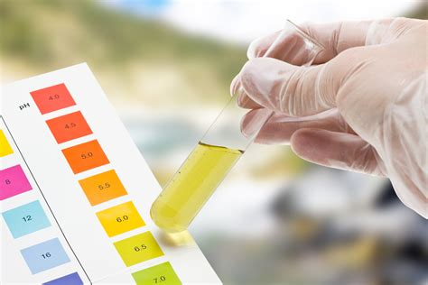 Simple Urine Test Being Developed at MIT to Detect Blood Clots