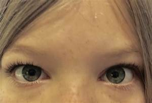 Why are some white people's eyes like the eyes of Chinese ...