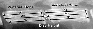 Calculation Of Disc Height Index From Mouse Lumbar Spinal