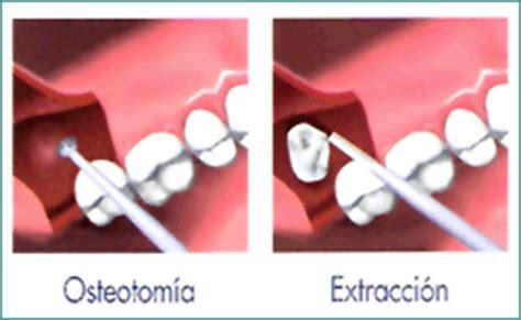 clinica dental gm nuestros servicios