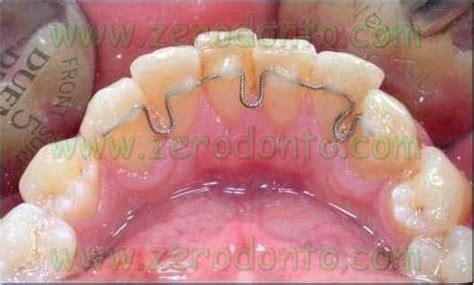 apparecchio interno costo ortodonzia invisibile contro ortodonzia estetica