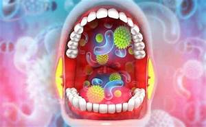 Can Mold Cause Strep Throat   U2013 A Complete Guide
