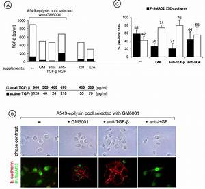 Epilysin (MMP-28) induces TGF-β mediated epithelial to ...