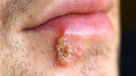 What Is Genital Herpes Hsv-1?