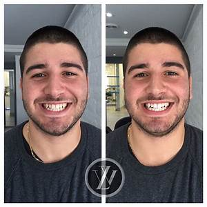 Zoom Whitening At Lawrence West Dental
