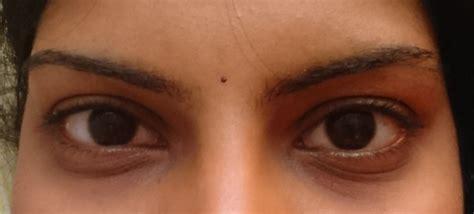eyes   quora