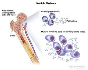 Multiple myeloma; drawing shows normal plasma cells, multiple myeloma ...  Multiple Myeloma Multiple Myeloma/Other Plasma Cell Neoplasms