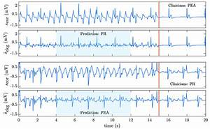 Figure9  Two Examples Of Misclassified Pea  Pr Rhythms  The