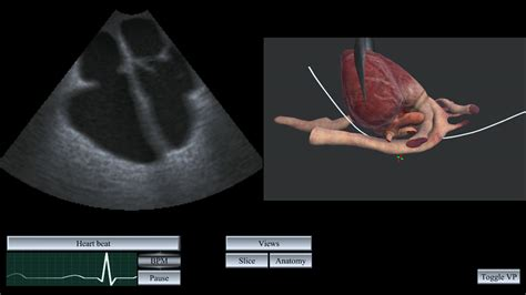 Sensegraphics  Ultrasound Simulation. Medical Translation English To Chinese. Google Redirect Virus Removal. Outpatient Substance Abuse Treatment Programs. China Airlines Economy Class. Remote Support Software Reviews. Dunhill Deodorant Stick Att Highspeed Internet. Sales Manager Requirements Odbc Text Driver. Laser Eye Center Of Silicon Valley