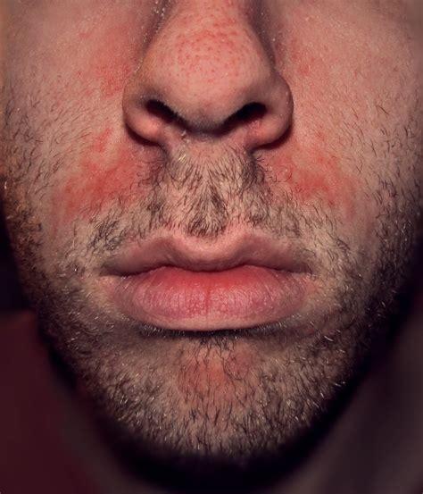 Seborrheic Dermatitis Symptoms Causes Treatment