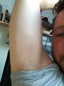 Sekundenkleber Auf Der Haut : pickel und pusteln auf der haut was ist das kr tze dermatologie ~ A.2002-acura-tl-radio.info Haus und Dekorationen