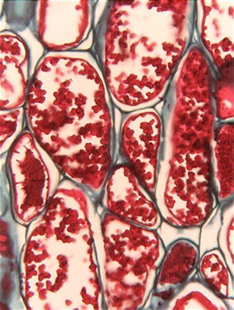 tannin cell