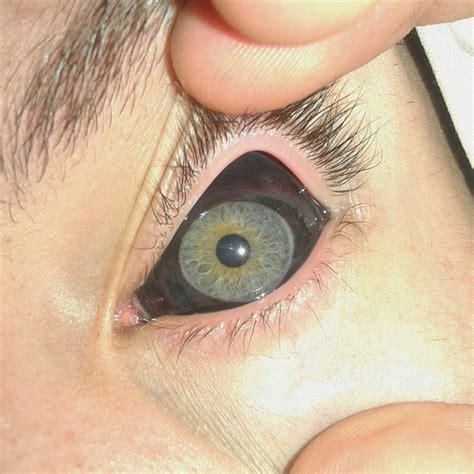 Corneal Tattooing eyeball tattoo designs meanings benefits 640 x 640 · jpeg