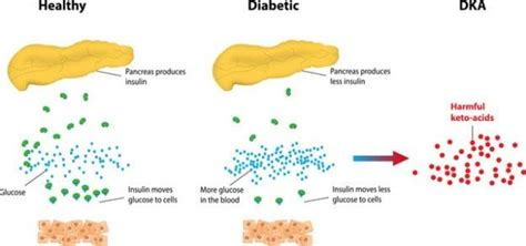 understanding ketones diabetic