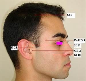 Allergy and Sinusitis - Jun Xu, M.D. (203) 637-7720  Allergy Acupuncture
