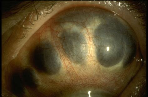 scleromalacia perforans american academy  ophthalmology