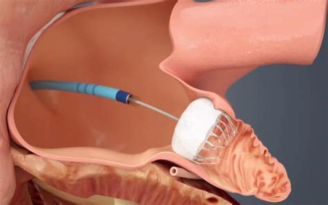 FDA Clears Watchman Device as an Alternative to ...