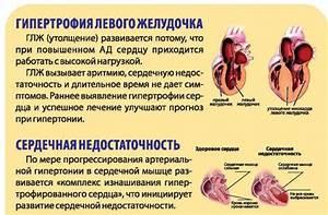 Гипертония если нижнее давление высокое