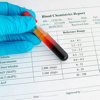 liver blood tests abnormal values high  normal