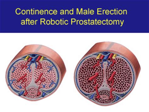 chapter  continence  male erection  robotic