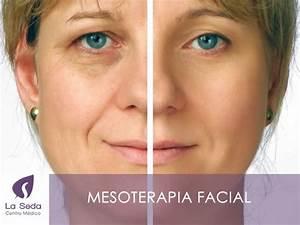 4 trucos para borrar las arrugas With cinta adhesiva para disimular las arrugas en el rostro