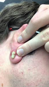 Drainage of an Ear Zit