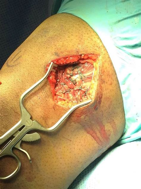 graphic photo  bobby greens torn quad muscle bjpenncom