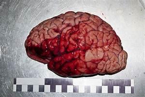 Болезни сосудов атеросклероз гипертония варикозная болезнь инсульт