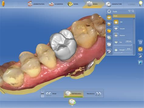 CEREC in practices: Welcome to a world of unlimited ...