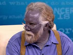 Famous Blue-Skinned Man Nicknamed 'Papa Smurf' Dies at 62