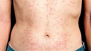 Chlorine Rash: Treatment and Prevention