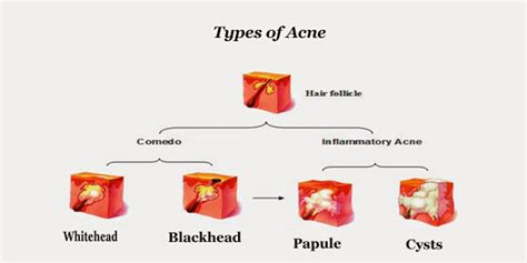 Acne Treatment For Men Proven Remedies For Adult Acne