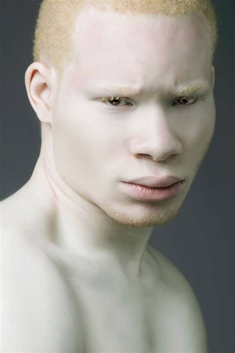 black albino humans google search albino model albino