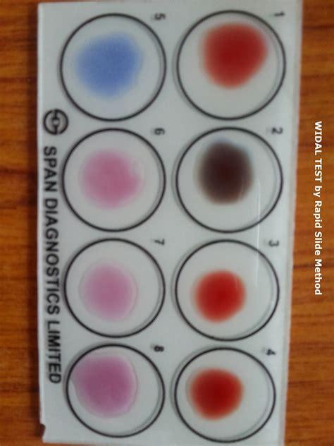 Snapshots Genetics Experiments Department