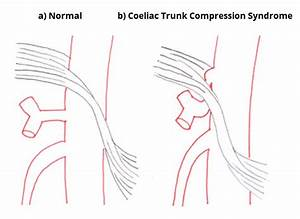 The Coeliac Trunk - Branches - Anastomoses