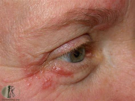 perioral dermatitt behandling oslo hudlegesenter