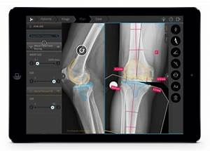 brainlab increases automation in orthopedic digital With orthopedic templating software