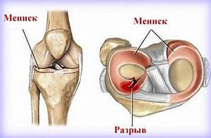 Посоветуйте от боли в плечевом суставе