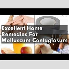 Excellent Home Remedies For Molluscum Contagiosum  Youtube