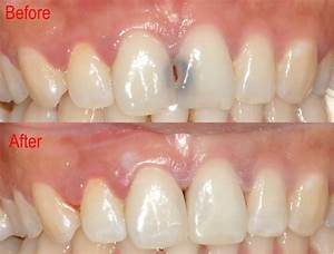 Before and After 5 | Burpengary Dental