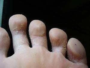 Грибок на пальцах ног мазь