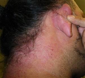 Dangerous Hair Dye June 72009 Hair Dye Allergy Reaction