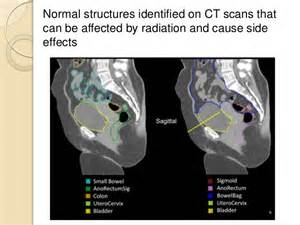 cat scan side effects radiation for cervix cancer