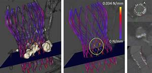 Influence Of Calcifications Onto Force Distribution  The Calcium