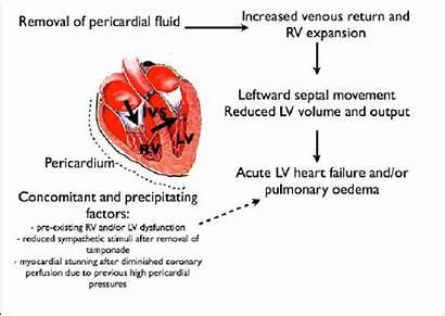 Cardiac Pathophysiology Decompression Pericardial Syndrome Drainage Possible