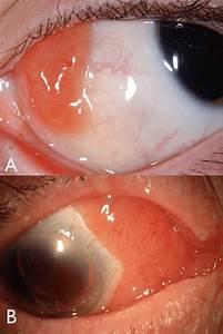 Conjunctival Lymphoid Tumors  A  Benign Reactive Lymphoid Hyperplasia