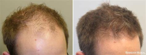 Medical Treatment of Hair Loss | Bernstein Medical