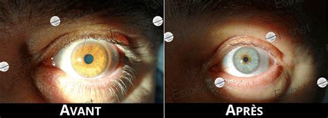 Changer la couleur de ses yeux en bleu c'est possible et ça ne prend que 20 secondes